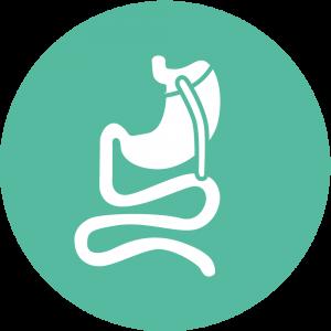 Gastric Bypass Surgery - Roux En Y